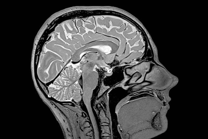 How do you differentiate brain injuries caused by sports from those caused by accidents?